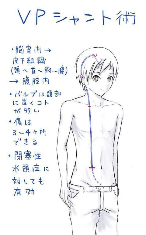 VPシャント図