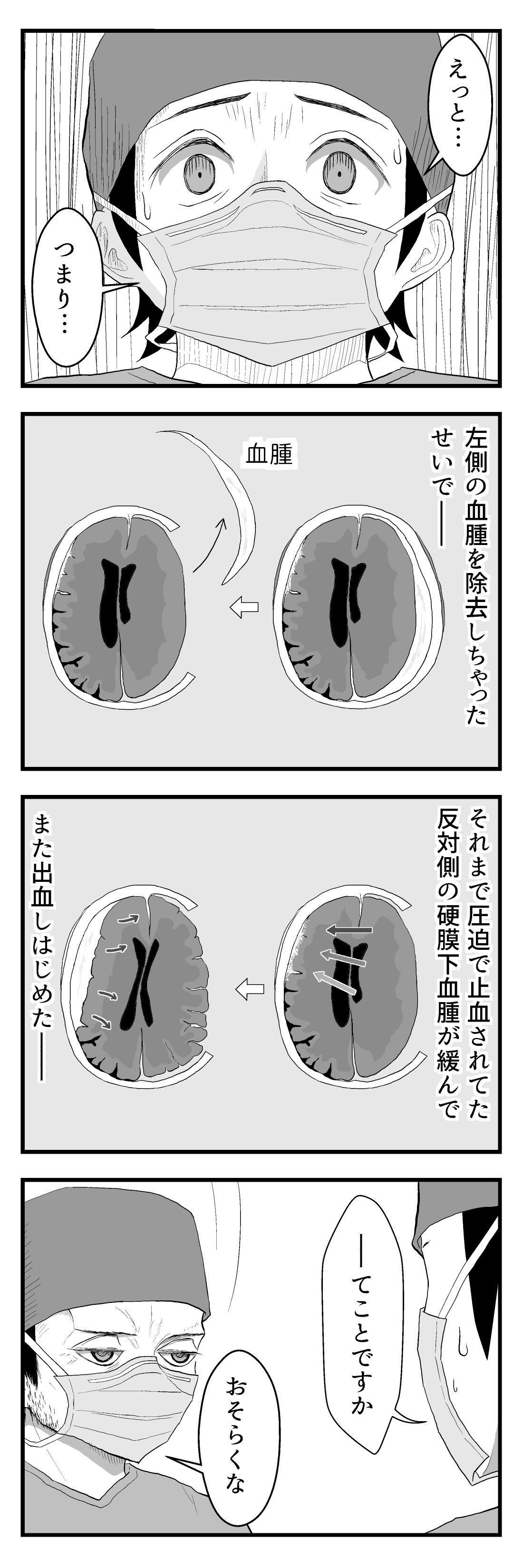 4panel100-1急性硬膜下血腫17-3
